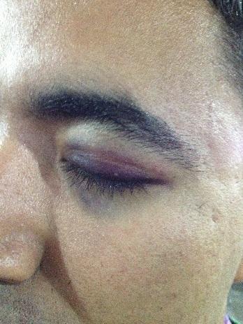 Campuseiro foi atingido na cabeça durante brincadeira da Azul - Foto: Elisandra Amâncio/Divulgação