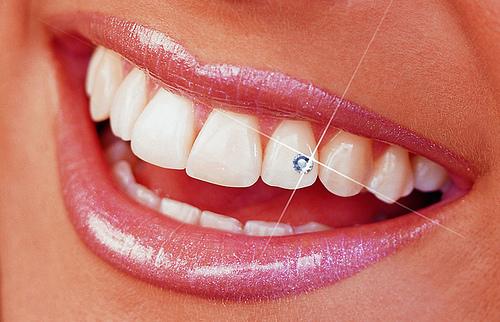 Tu sonrisa es una joya | | Blog: ¡Arréglate Ya! - Belleza